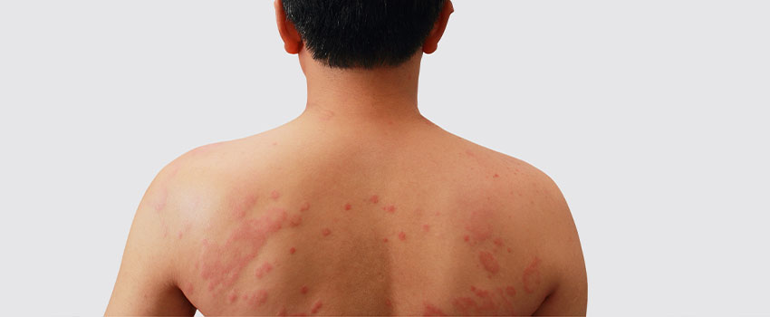 What to Do When You Develop a Rash